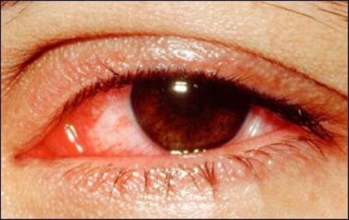 Biến chứng của bệnh viêm xoang tại mắt