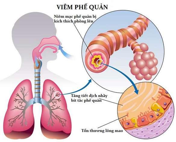 Biến chứng của bệnh viêm xoang tại họng và phế quản
