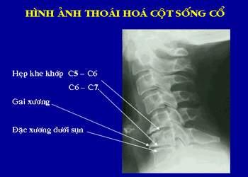 Triệu chứng thoái hóa cột sống cổ trên hình ảnh Xquang