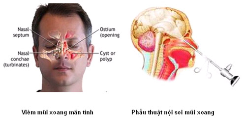 chua-viem-xoang-co-khoi-han-khong-2